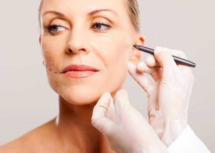 Chirurgie Esthétique Lifting du visage